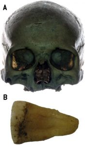 Putative skull and tooth of Jan Kochanowski