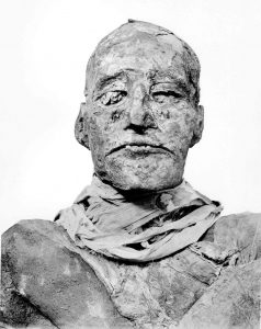 Mummy of Ramesses III (Figure from Hawass Z et al. (2012) BMJ)