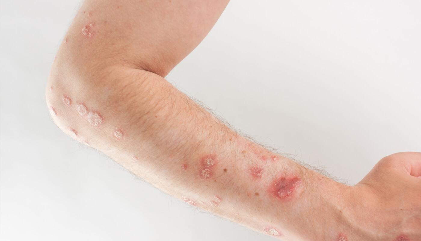 psoriasis-affected skin