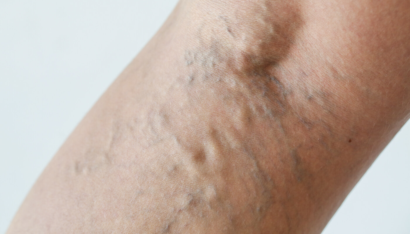 close up of varicose veins