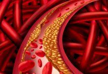 cholesterol buildup in a blood vessel