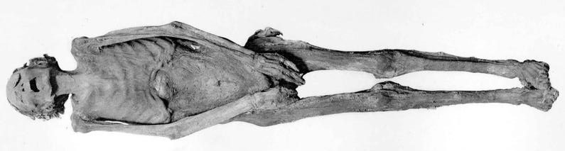 "Mummy of the ""Unknown Man E"", likely identified as Pentawer"