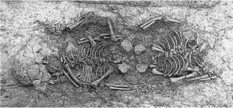 Sketch image of the skeletons that were thought to be of conjoined twins