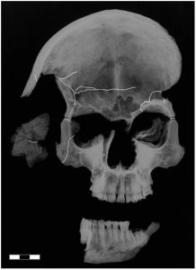 Anteroposterior radiograph of the skull,