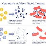 warfarin_2